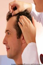 dealing-with-baldness-300x450